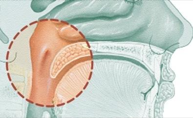 Лечение рака носоглотки в Израиле