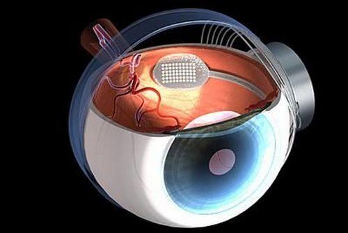 В Ираиле проведена уникальная операция по имплантации микрочипа в глаз слепого пациента.